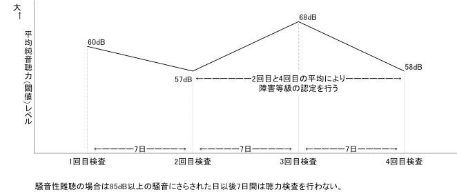 純音聴力検査(4回)